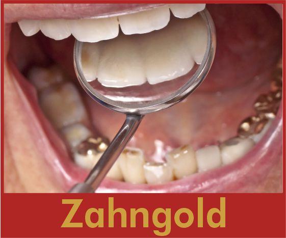 zahngold ankauf bei goldaufkauf24.de